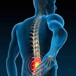 Lombalgie : que faire pour atténuer les douleurs de dos ?