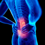 Conseils et astuces pour anéantir le mal de dos