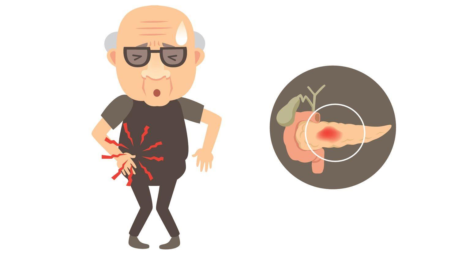 facteurs de risque du pancréas