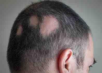 Comment faire repousser un trou dans les cheveux ?