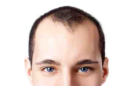 Comment s'appelle le médecin pour les cheveux ?