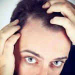 Comment savoir si on a une perte de cheveux ?