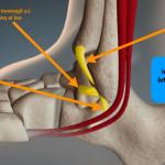 Comment savoir si un ligament est déchiré cheville ?