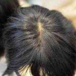 Quel cancer fait perdre les cheveux ?